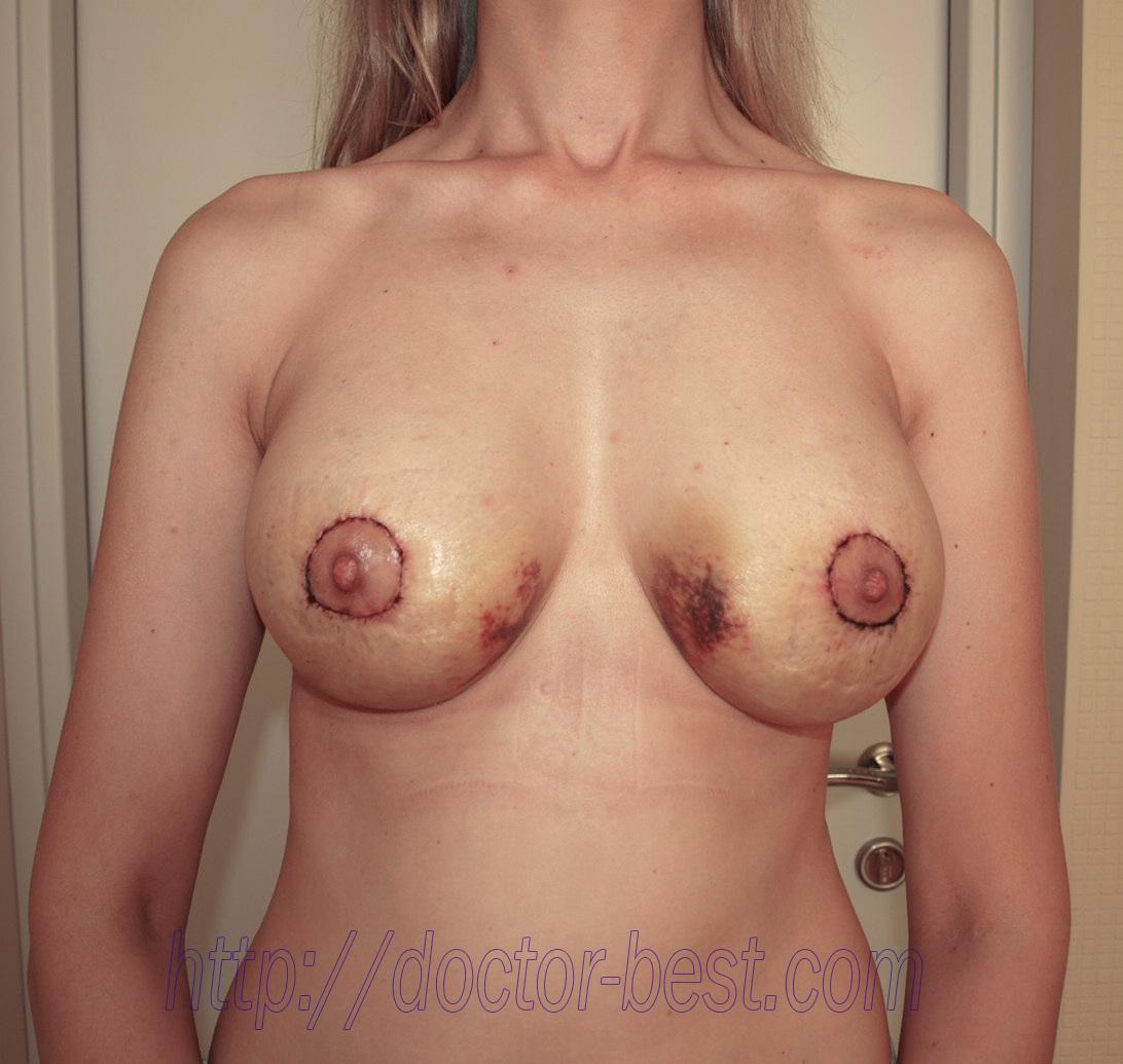 Силиконовый бюстгальтер увеличивает грудь