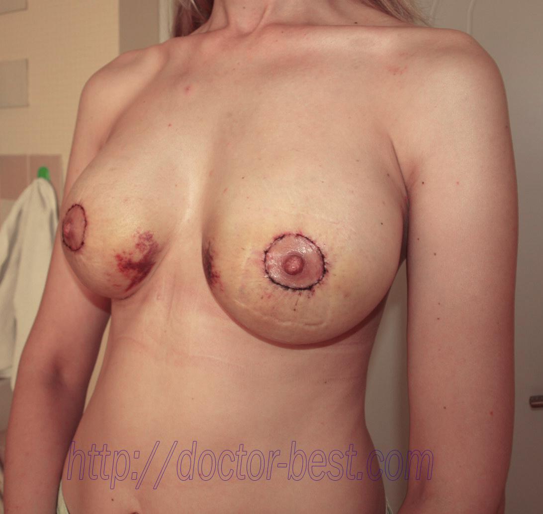 Не та форма груди после маммопластики